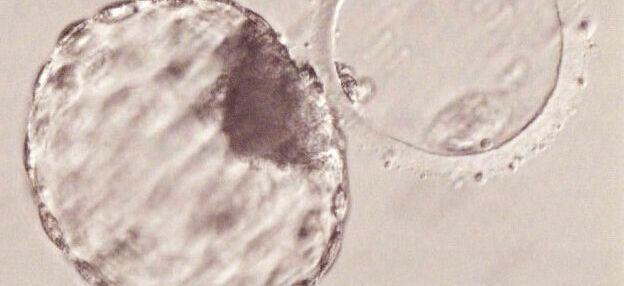 受精卵のグレード 初期胚と胚盤胞のグレードの見方